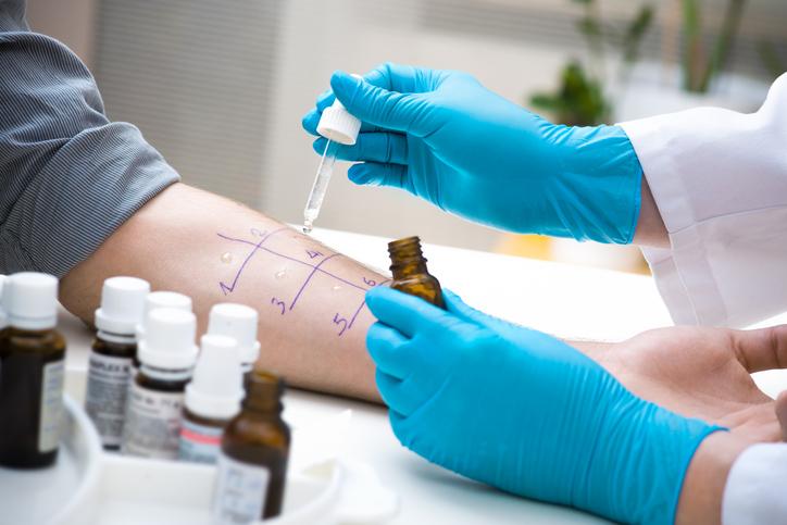 Priktest bij dokter voor nagaan huisstofmijt allergie.