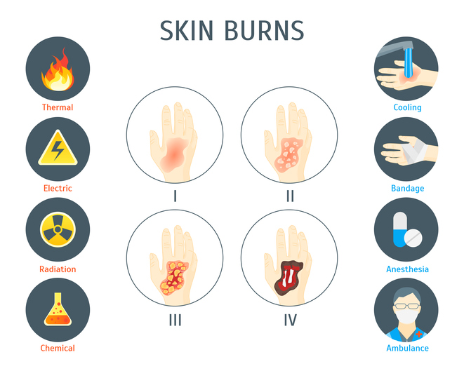 De gradaties van brandwonden en hoe deze eruit zien.